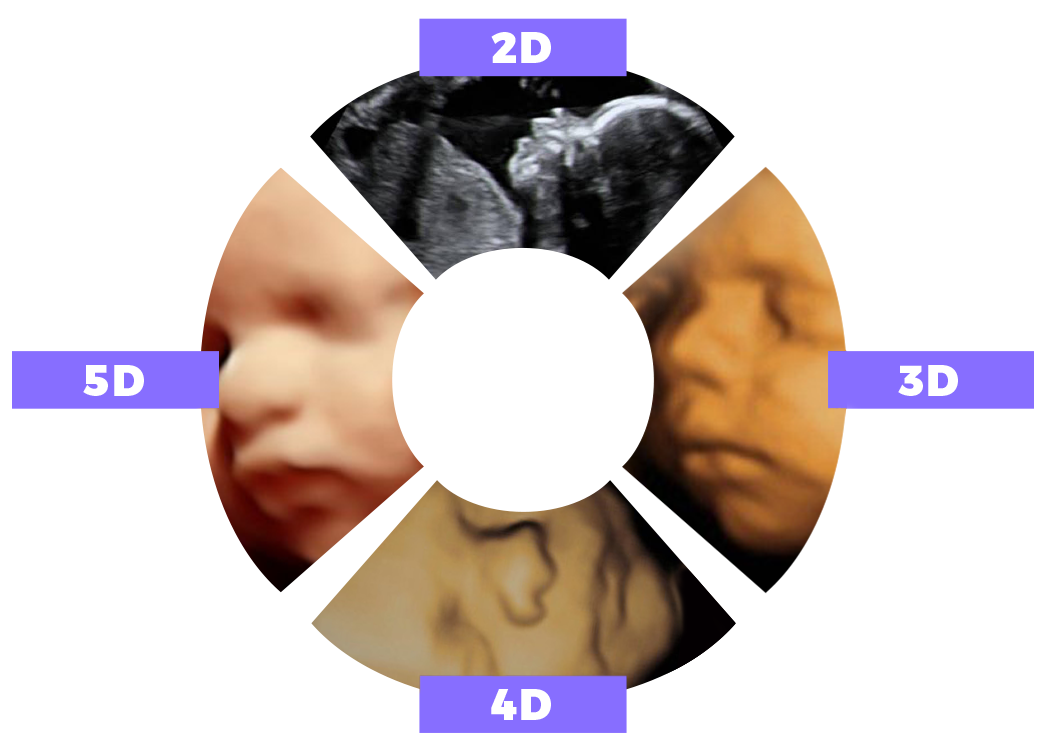 graphic displaying difference between 2D,3D,4D, and 5D images